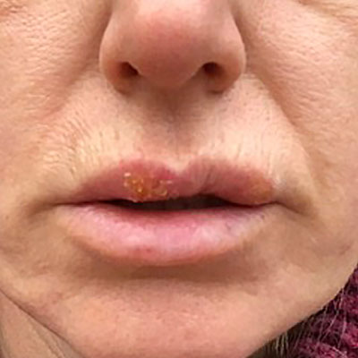 A sore on the upper lip