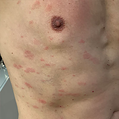 Pityriasis rosea on the chest