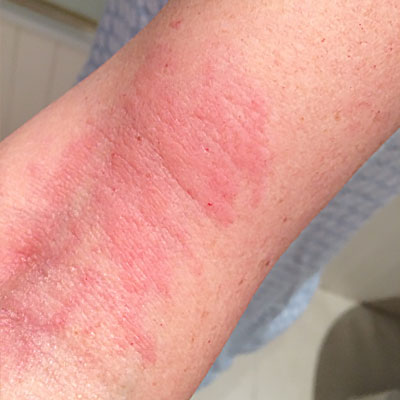 Urticaria on the arm
