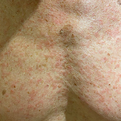 Viral exanthem on the chest